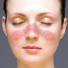 Qu'est-ce que le lupus ? | Psychomédia