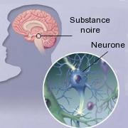 Maladie de Parkinson: effet protecteur de l'ibuprofène (Advil ...