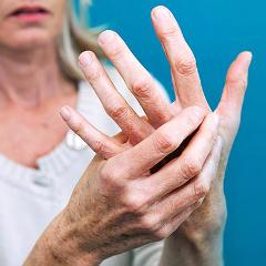 Évolution de la polyarthrite rhumatoïde à la ménopause | Psychomédia