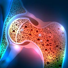 Prolia contre l'ostéoporose : risque potentiel de fractures ...
