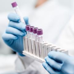 Les anticorps dirigés contre les coronavirus sont plus élevés chez les personnes âgées que chez les adultes plus jeunes et les anticorps de liaison sont plus sensibles que les anticorps neutralisants pour identifier les maladies associées aux coronavirus