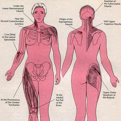 Super Diagnostic de la fibromyalgie : les 18 points douloureux à la  QR41