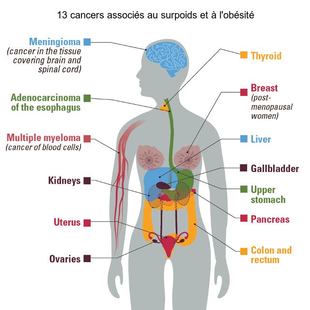 L'obésité liée à un risque accru de 13 cancers | Psychomédia